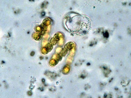 Anabaena spiroides